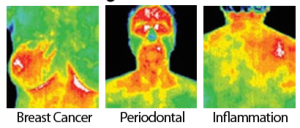 Thermography Detects Health Conditions